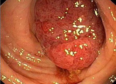 Dấu hiệu ung thư đại tràng thường bị nhầm lẫn với các bệnh thông thường khác!
